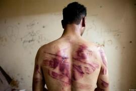 منظمة العفو الدولية: العائدون إلى سوريا يتعرضون للتعذيب والاغتصاب من قبل قوات تنظيم الأسد الأرهابي.