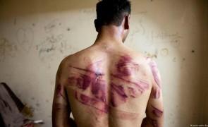 """حياة أشبه بالموت"""".. توثيق انتهاكات بحق السوريين العائدين لبلادهم"""